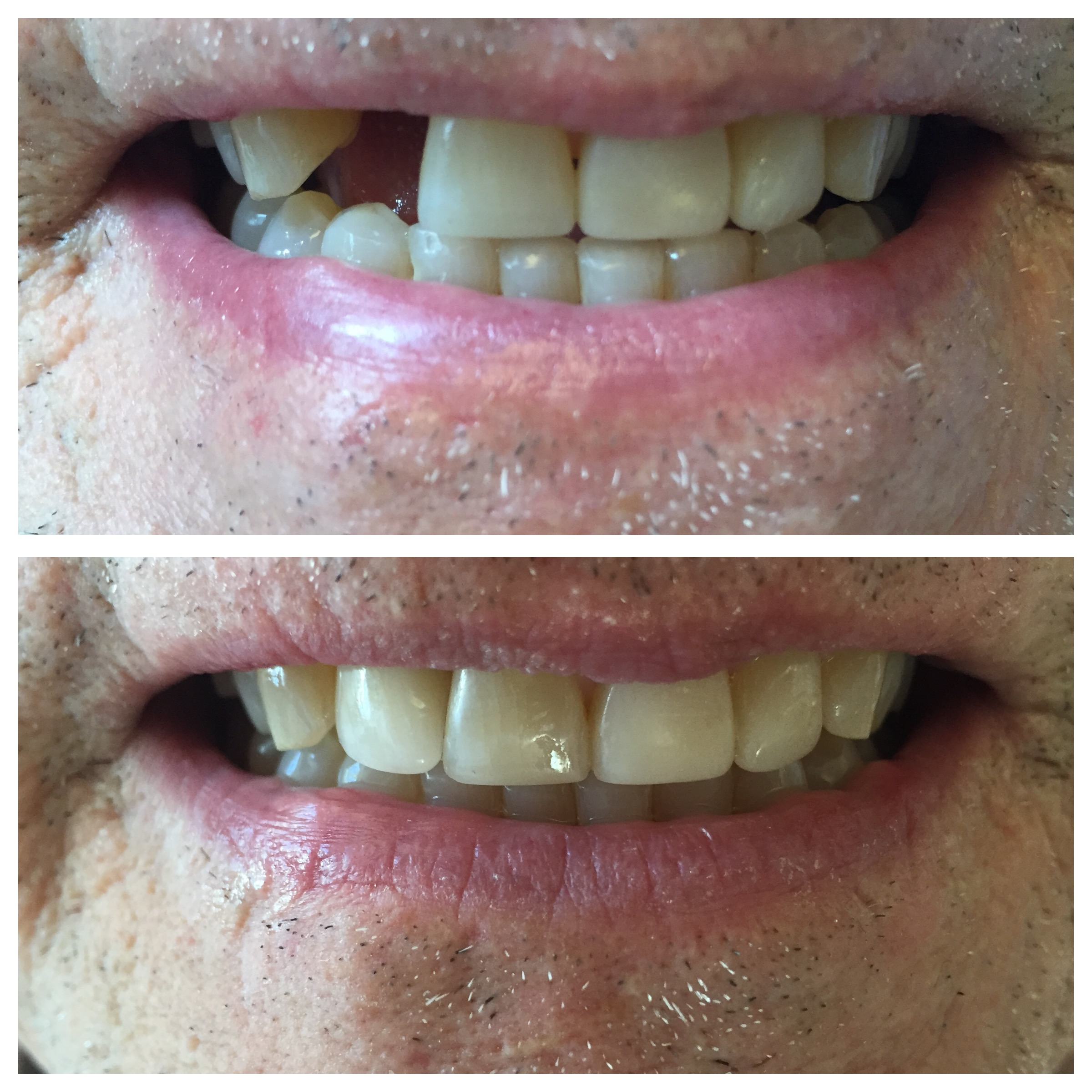 THANKS TO A DENTAL IMPLANT MY PATIENT GOT ONE OF HIS FRONT TEETH BACK!