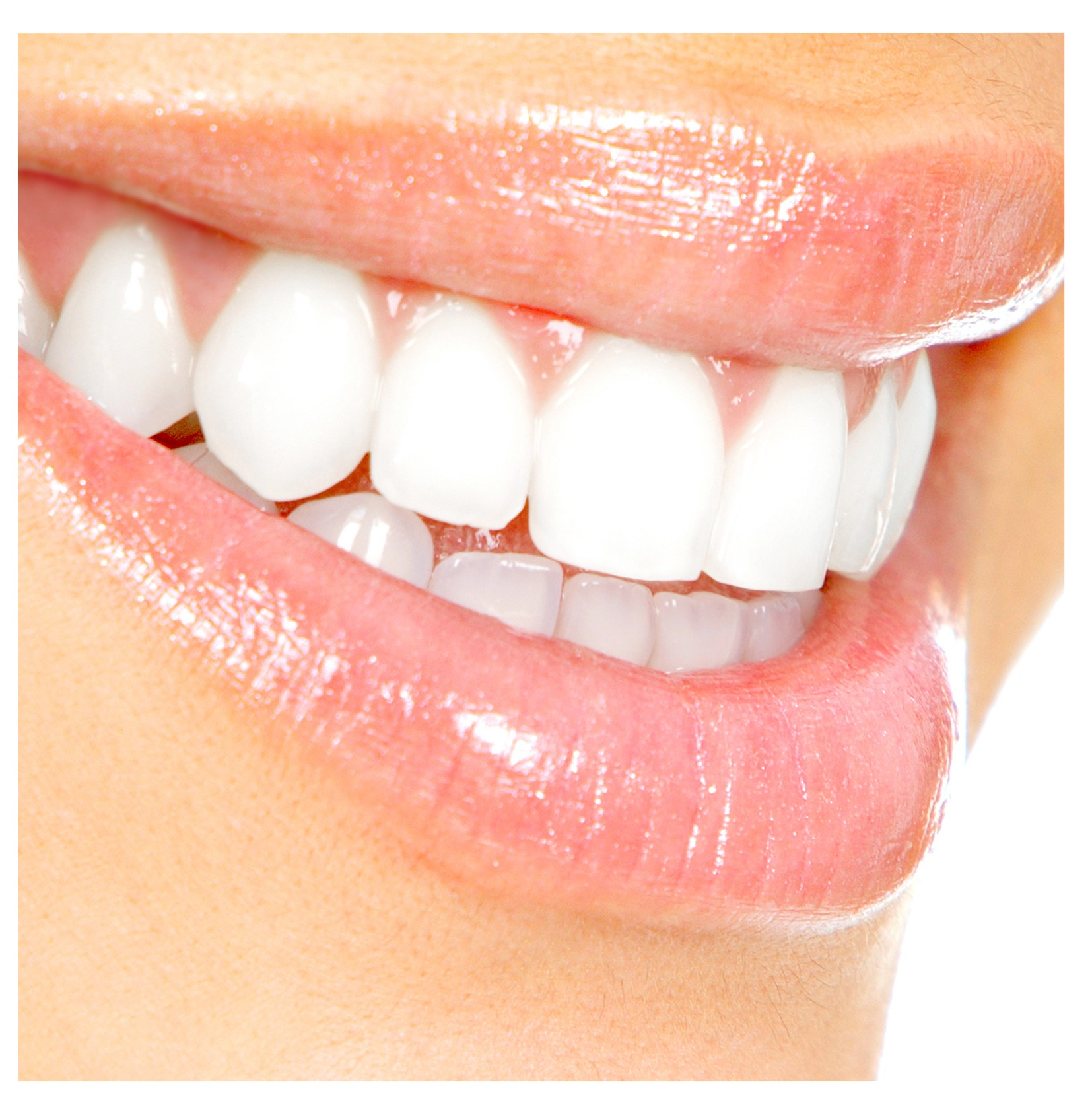 WHAT IS A PORCELAIN VENEER?