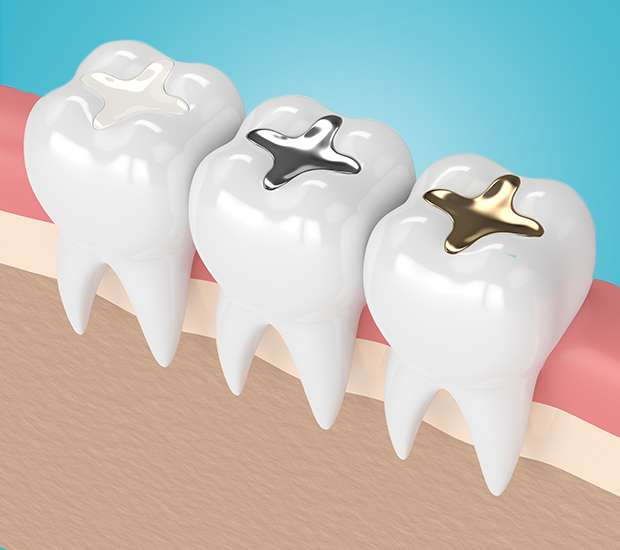 Miami Composite Fillings