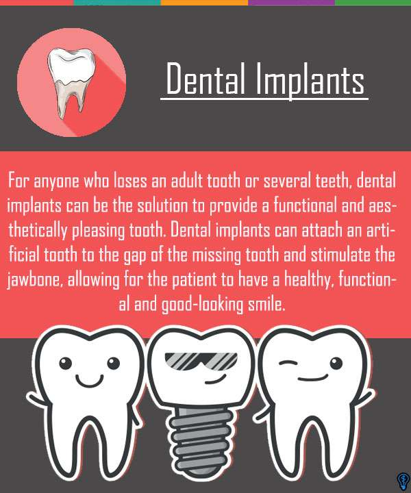 Dental Implants Are The Solution For Missing Teeth