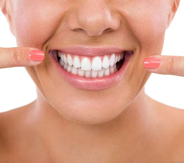 Miami What Is Gum Contouring & Reshaping