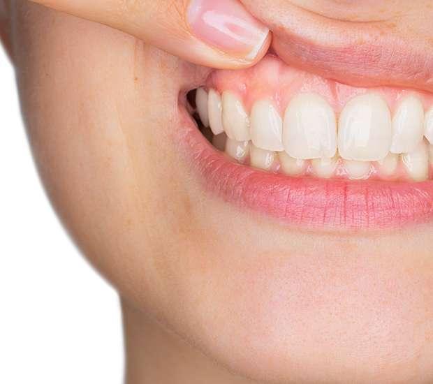 Miami Gum Disease