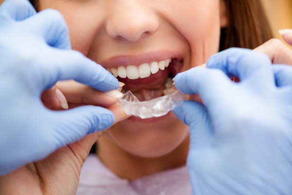 An Invisalign Dentist Shares The Benefits Of Invisalign®
