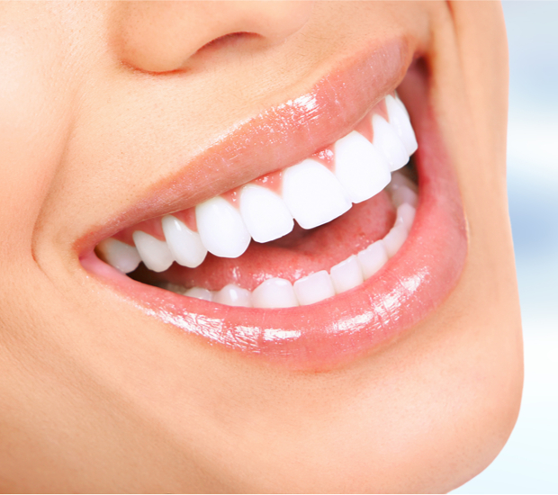 Miami Dental Veneers and Dental Laminates